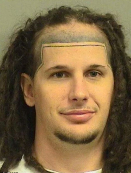 Ideal Hairline